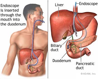 endoscopic.jpg
