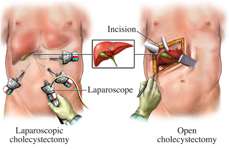 laparoscopic.jpg